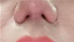 Tin tức đời sống ngày 28/2: Không thở được, mất khứu giác sau nâng mũi