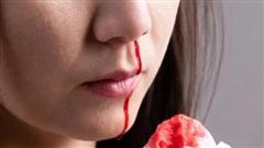 Nếu cơ thể chảy máu ở 5 vị trí sau, cần đi khám bác sĩ ngay vì có thể bạn đã mắc ung thư từ lâu mà không biết