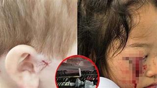 Bé trai 4 tuổi bị thương nặng ở tai vì thứ bé xíu trong siêu thị, cửa hàng quần áo nào cũng có