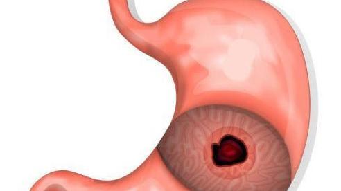 Uống thuốc nam chữa đau cột sống, bệnh nhân thủng dạ dày thức ăn tràn vào ổ bụng