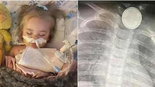 Nuốt phải một vật nhỏ trong điều khiển ti vi, bé gái 17 tháng tuổi tử vong trong đau đớn