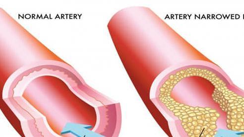 Đột tử, đột quỵ có thể bắt đầu từ mỡ máu cao: Hãy sớm bổ sung 4 món này để phòng ngừa