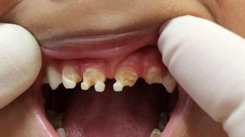 Những bệnh răng miệng ở trẻ em cần phải xử lý trước năm 12 tuổi, nếu không sẽ ảnh hưởng đến diện mạo cả đời