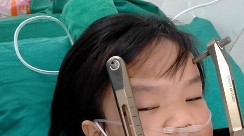 Bé Phan Thị Lê Na mắc u não được ủng hộ gần 50 triệu đồng