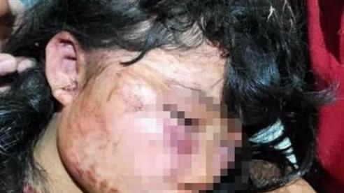 Tin mới vụ nữ sinh bị đánh trong lô cao su