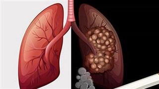 Năm 2020 thêm 26.000 người Việt mắc ung thư phổi