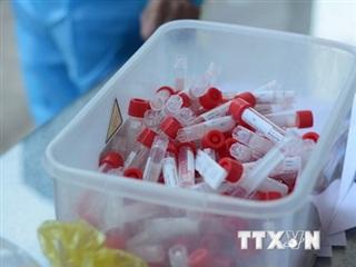 Hà Nội: Thêm các trường hợp mắc COVID-19 do đi du lịch, thăm bệnh
