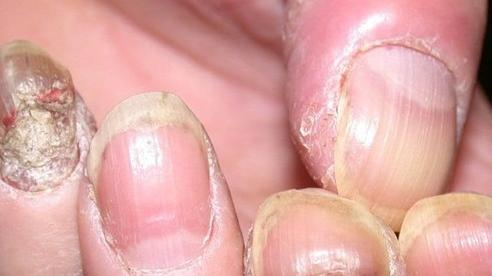 Vì sao móng chân tay ngả vàng, nát mủn?