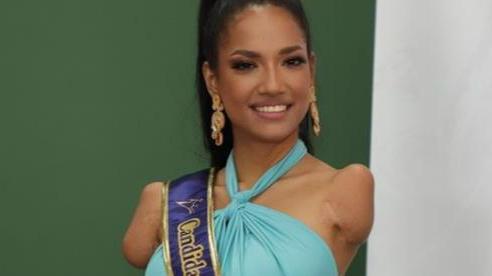 Những người đẹp khuyết tật gây sốt các cuộc thi hoa hậu