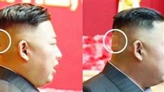 Ông Kim Jong-un bất ngờ xuất hiện với băng dán sau đầu