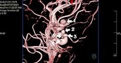 Thường xuyên đau đầu, đi khám phát hiện 5 túi phình như chùm nho trong não