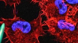Vaccine mRNA: Sẽ mở ra cuộc cách mạng chống ung thư và bệnh tự miễn?