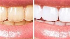 10 bí quyết chăm sóc răng miệng giúp bạn không bao giờ phải gặp nha sĩ