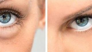 8 phương pháp đơn giản 'đánh bay' tình trạng sưng mặt, sưng bọng mắt