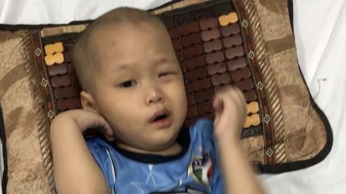 Tiếng 'ú ớ' xin cứu mạng của đứa trẻ mắc bệnh u não