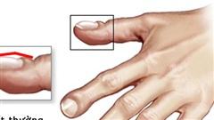 Dấu hiệu ở ngón tay cảnh báo ung thư phổi