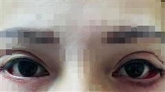 Cô gái trẻ suýt bị mù sau khi... cắt mí mắt