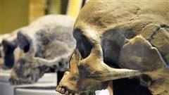 Sốc: 3.000 năm trước, não loài người bị thu nhỏ lại