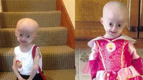 Bé gái 8 tuổi mang hình hài của bà cụ 70 tuổi, trông yếu ớt nhưng vô cùng mạnh mẽ, vẫn không tránh khỏi số phận định sẵn