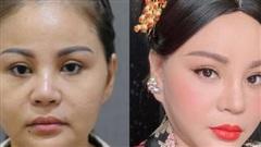 'Nữ hoàng dao kéo' Lê Giang kể về kỉ lục phẫu thuật thẩm mỹ: 'Tôi sửa mũi 10 lần, mắt 1 lần, cằm 2 lần, lấy cả sụn tai đắp vào mũi'