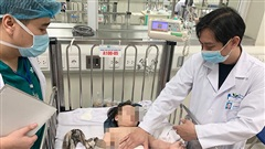 Tình trạng mới nhất của bé gái 3 tuổi rơi từ tầng 12 chung cư cập nhật từ Bệnh viện Nhi Trung ương