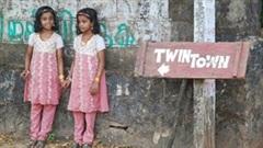 Bí ẩn làng sinh đôi kỳ lạ ở Ấn Độ