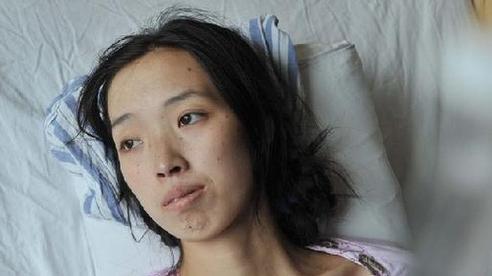 Nữ quản lý 33 tuổi qua đời vì ung thư dạ dày, bác sĩ chỉ ra 3 thói quen ăn uống dễ gây tử vong hơn cả hút thuốc, uống rượu