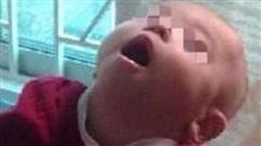 Bé gái 8 tháng tuổi bị bại não vì ông bà nội bế trên tay rung lắc cho cháu ngủ trong một thời gian dài