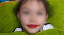 Xăm môi cho bé gái 5 tuổi