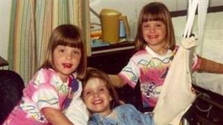 17 tháng tuổi bị bỏng nặng vì hỏa hoạn, 3 chị em sinh ba được chẩn đoán không sống được lâu, cuộc sống và dung mạo hiện tại khiến ai cũng trầm trồ