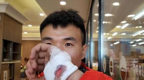 SỐC: Thoát chết trong gang tấc ở marathon 'tử thần', VĐV Trung Quốc lập tức bị CĐM dọa giết