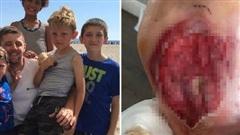 Đưa các con ra bãi biển tổ chức tiệc nướng, ông bố gặp sự cố kinh hoàng đau thấu xương, các gia đình đều phải cảnh giác