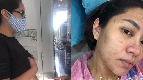 Hoa hậu Đặng Thu Thảo lộ ảnh khi mang thai, nhìn khuôn mặt chi chít mụn không ai có thể nhận ra