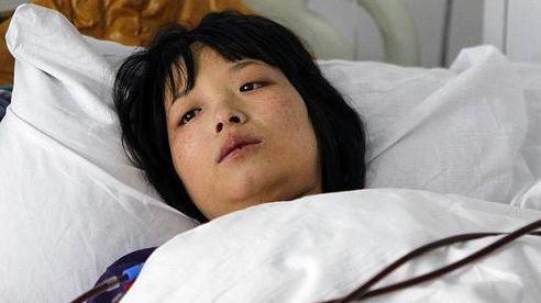 Người phụ nữ 30 tuổi qua đời vì ung thư gan, nguyên nhân xuất phát từ món ăn 'đặc sản' đang được rất nhiều người trẻ ưa chuộng