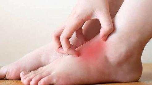 Không phân biệt nam nữ, có 2 thay đổi ở bàn chân là dấu hiệu của bệnh tiểu đường cần đi khám ngay