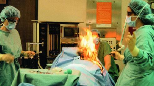 Bệnh nhân đang phẫu thuật bỗng bốc cháy khiến bác sĩ thất kinh bạt vía, ai cũng ngỡ ngàng khi biết nguyên nhân