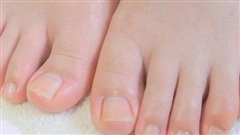 Bàn chân có 5 dấu hiệu này chứng tỏ đường huyết đang tăng cao, kiểm tra ngay sẽ giúp ngừa các biến chứng tiểu đường