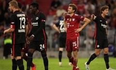 Bayern thua trận đầu ở Bundesliga mùa này