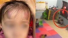 Vụ bé gái 2 tuổi bị bé trai 3 tuổi cùng lớp đánh đập dã man: Rất có thể đứa trẻ bị ảnh hưởng của game bạo lực?