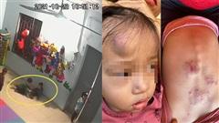 Cô giáo không có mặt, một bé gái 20 tháng tuổi bầm tím khắp người nghi do bị bạn cùng lớp đánh